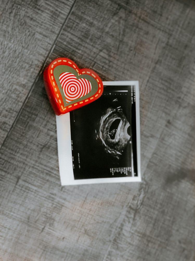 Foto mit Ultraschall vom Baby